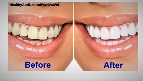 Use Lemon Juice To Whiten Teeth Doctor Advises Journalism Mak